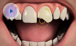 Worn & Chipped Teeth | Dental FX